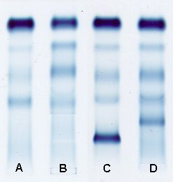 Protein Electrophoresis Serum
